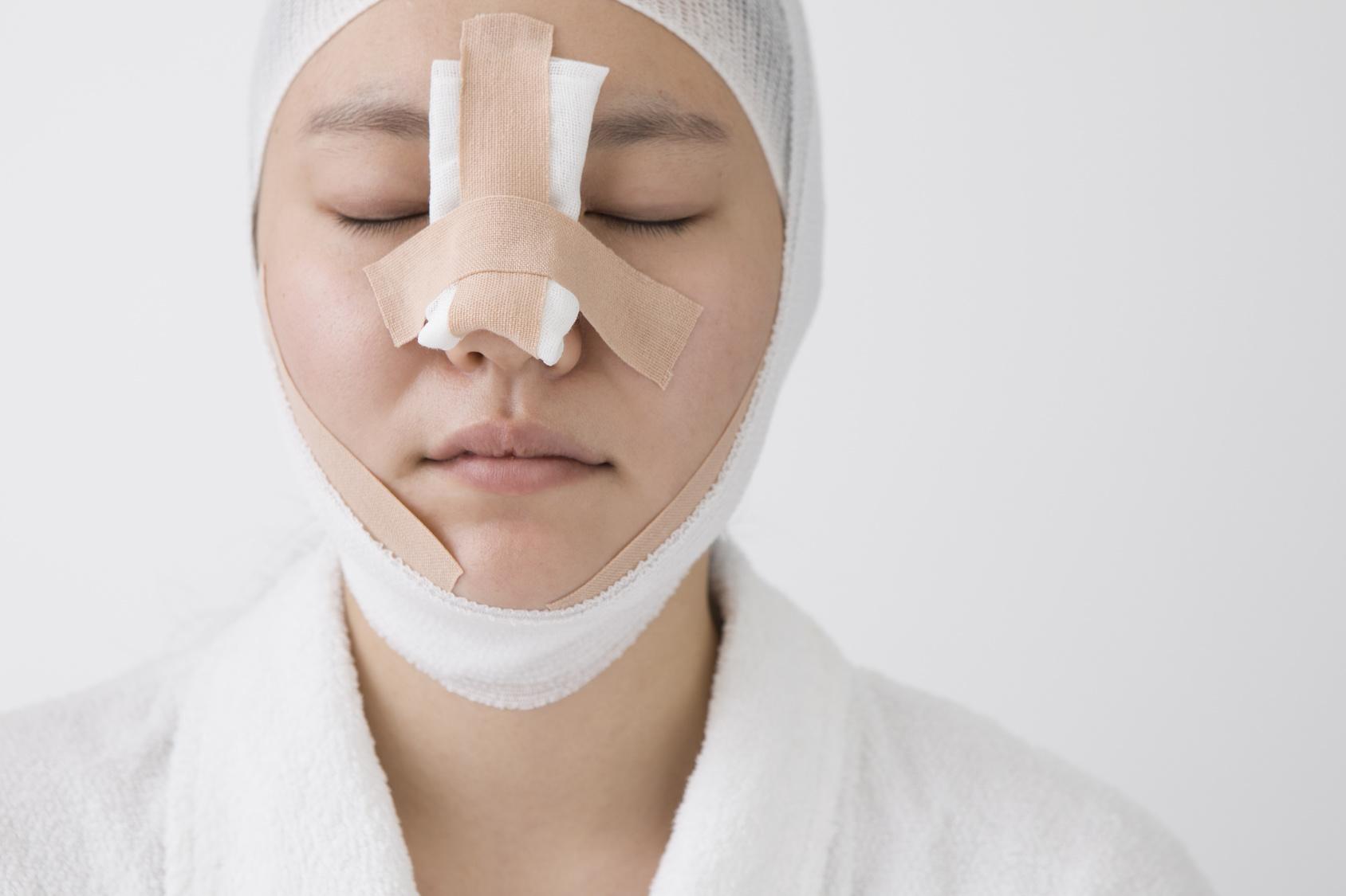 鼻 自家組織移植のアフターケア