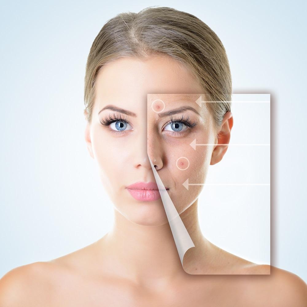鼻中隔延長PRC法の修正