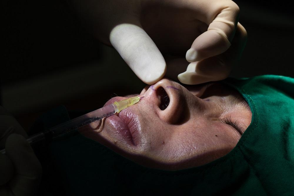 鼻中隔延長術(鼻中隔軟骨)の失敗