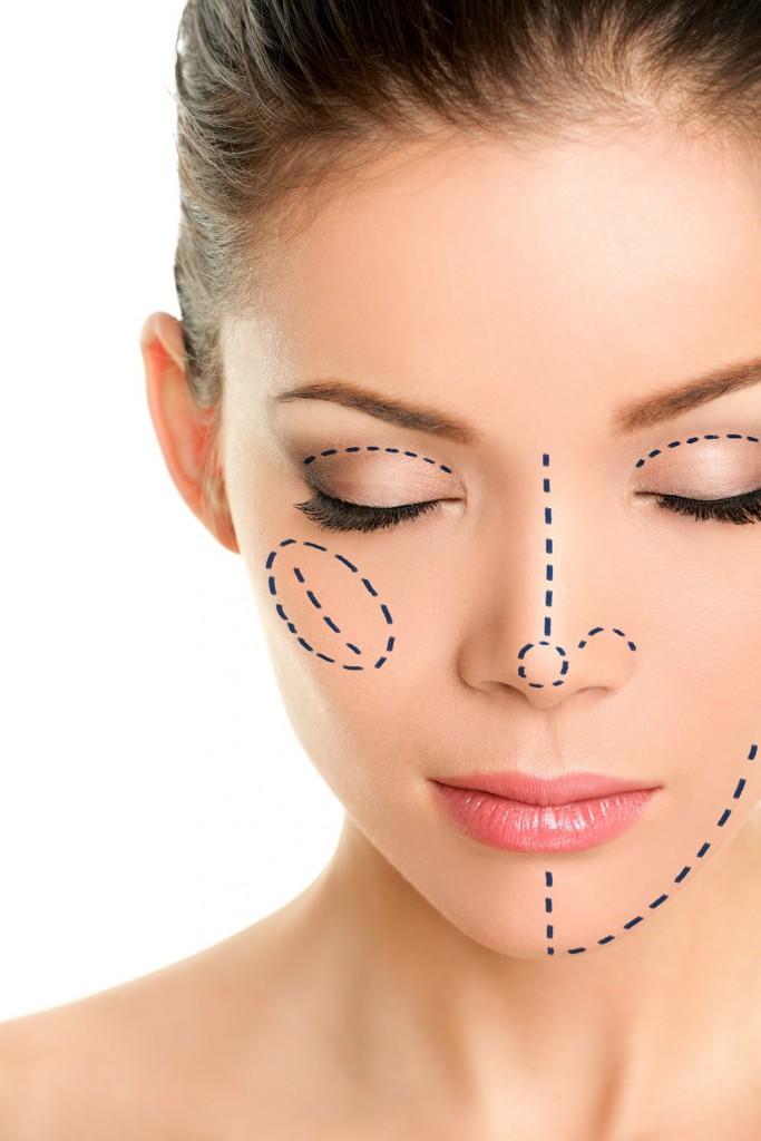 鼻根部Vライン形成の効果