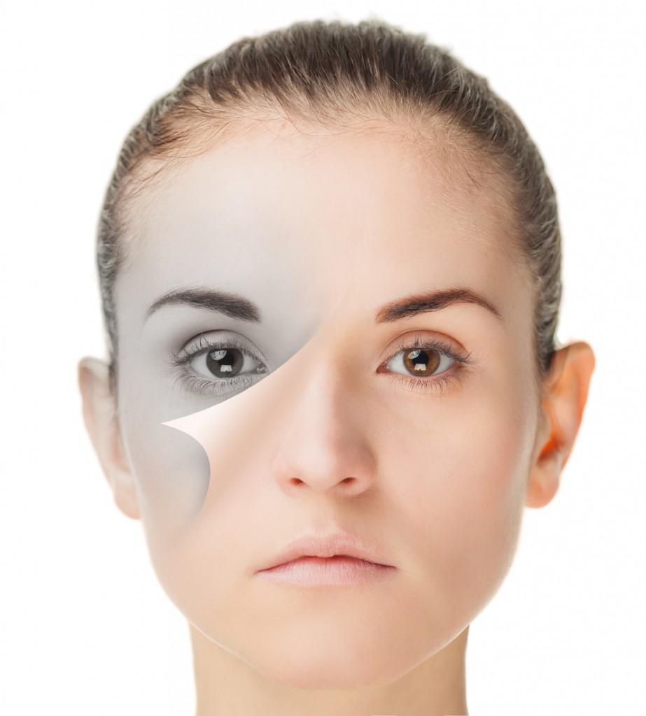鼻尖吊り下げ術の修正