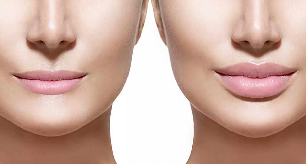 鼻翼基部プロテーゼの修正