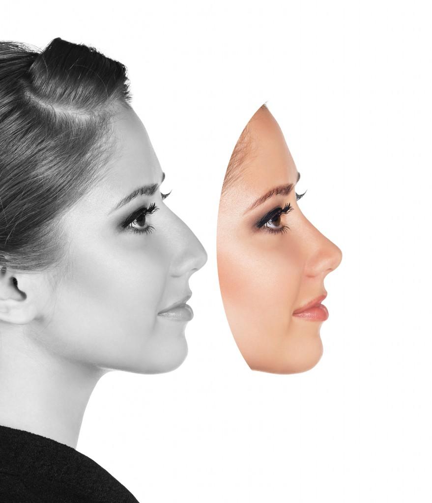 団子鼻整形の効果