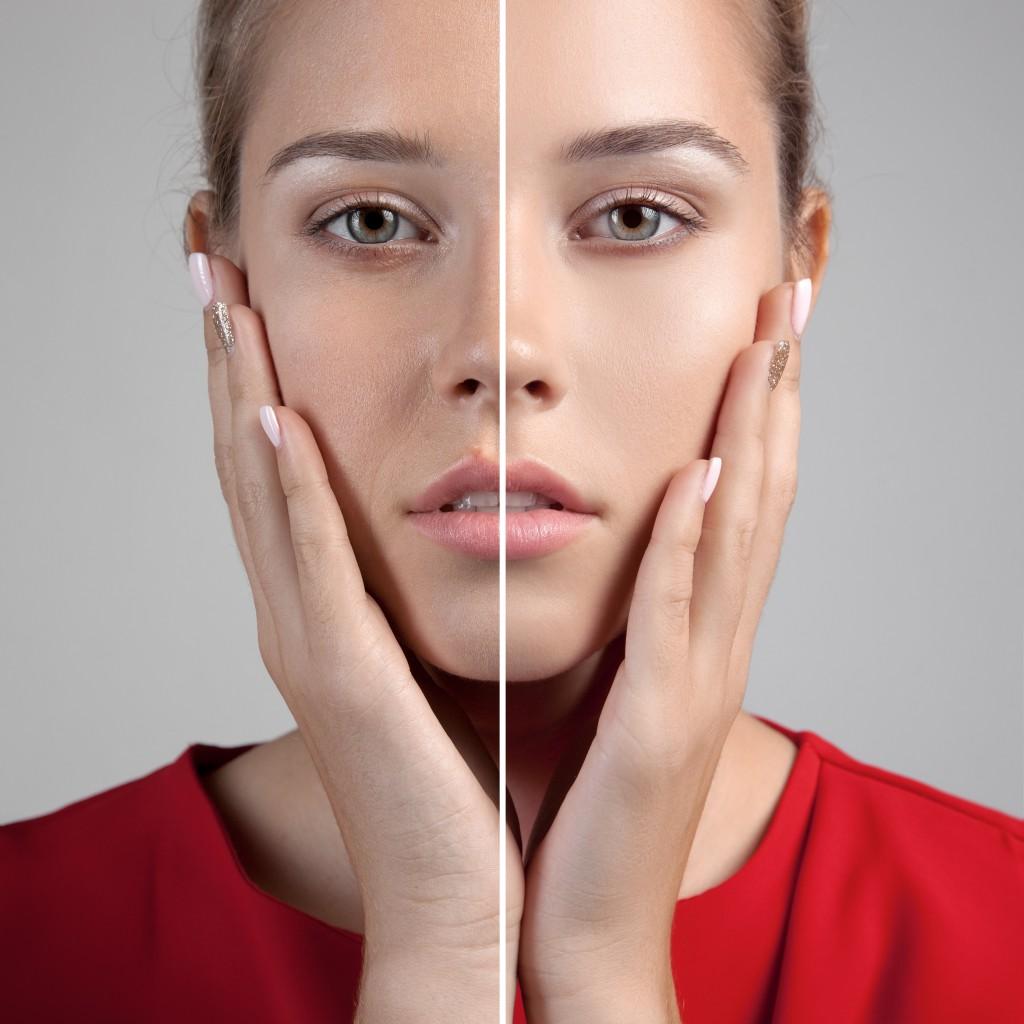 鼻ゴアテックスプロテーゼの修正