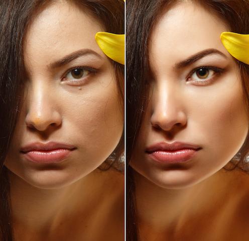 小鼻縮小術の修正