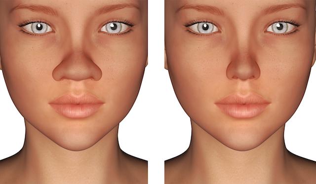 小鼻縮小術の効果