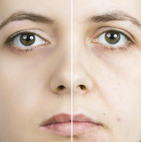 プチ鼻尖縮小術の修正