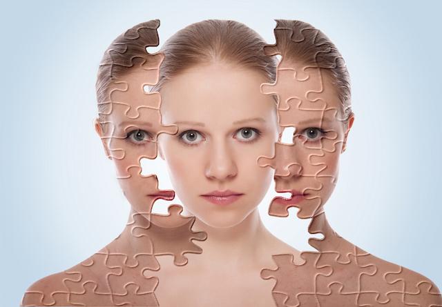 プチ鼻翼縮小術の修正