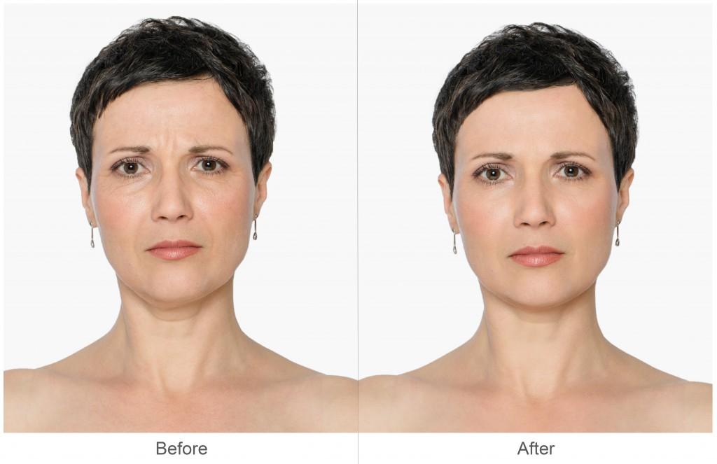 プチ鼻翼縮小術のデメリット