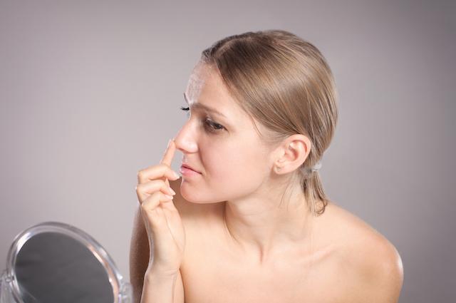 プチ鼻翼縮小術の失敗