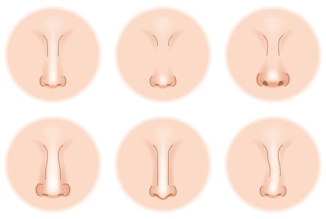 鼻プロテーゼ抜去の効果