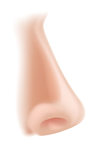 鼻シリコンプロテーゼの失敗