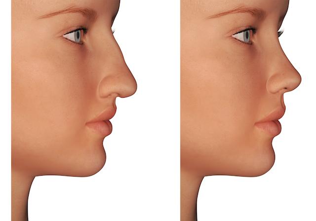 わし鼻修正のメリット
