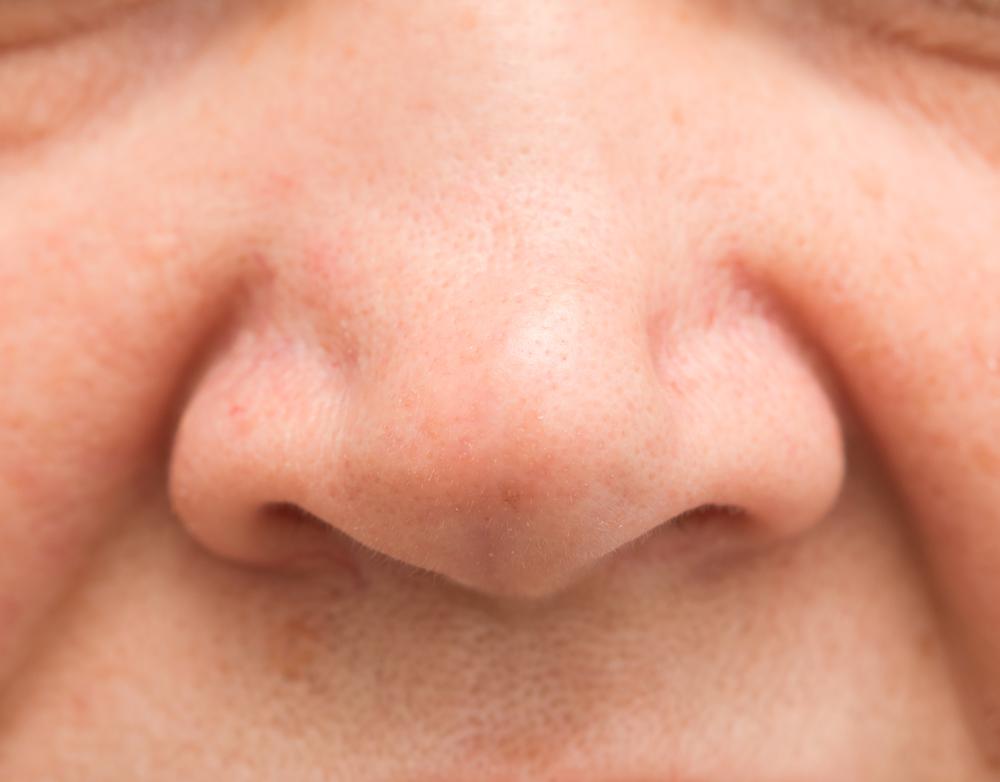 プチ小鼻縮小術の失敗